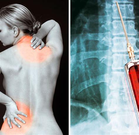 wann op bei bandscheibenvorfall r 252 ckenschmerzen wann ein bandscheibenvorfall zum notfall