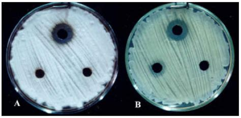 first report of antifungal spectra of activity of iranian
