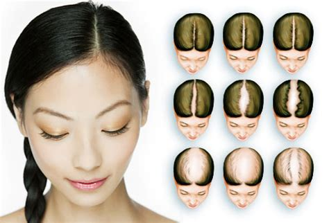 getting fullness on the hair crown women s hair loss pictures causes treatments and more