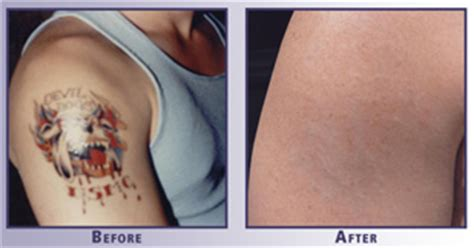 tattoo removal franchise just tattoo removal