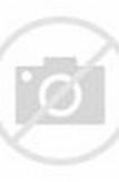 Marty Feldman's Eyes