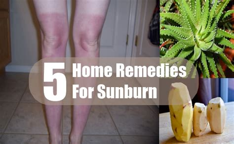 5 home remedies for sunburn treatments cure for