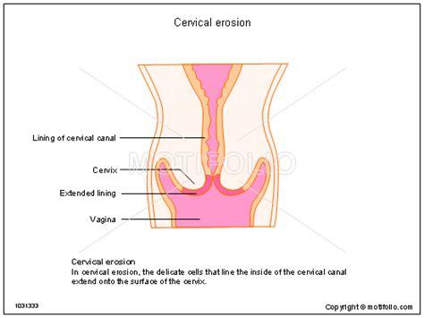 cervix diagram cervical erosion illustrations