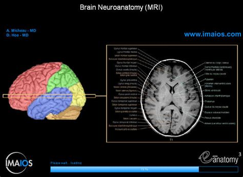 axial section of brain cross sectional anatomy of the brain