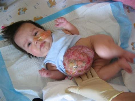born with definition omphalocele causes symptoms treatment omphalocele