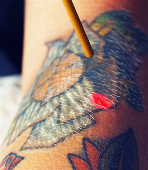 eraser clinic is first to provide astanza trinity laser