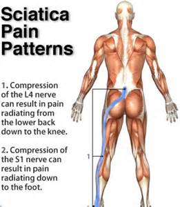 Acute Sciatica Pain Relief Images
