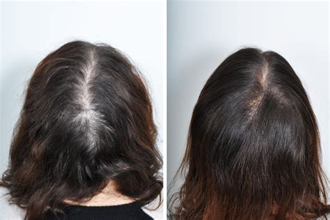 before snd after picture of hair growth in eonen hair transplant surgery for women in new york city david