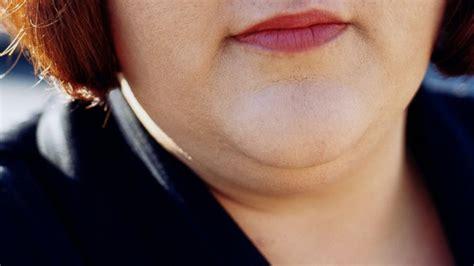 women fat necks fda approves double chin eliminator injection abc news