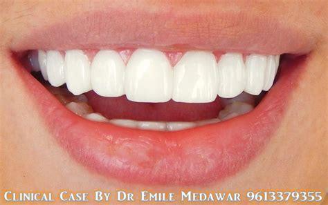 hollywood smile veneers dental implant  lebanon style