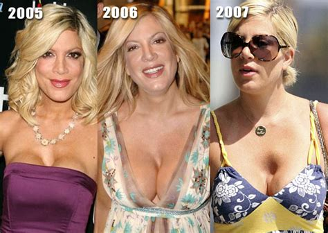 tori spelling just breast implants forum