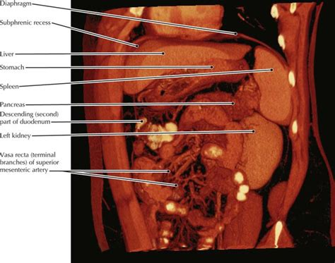 torn stomach muscle after c section abdomen radiology key