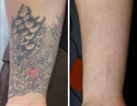 tattoo prices lexington ky inkundu laser tattoo removal lexington ky in lexington ky