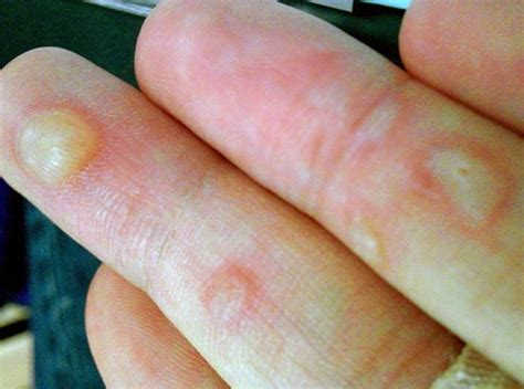 best treatment for blisters on healing ointment related keywords healing