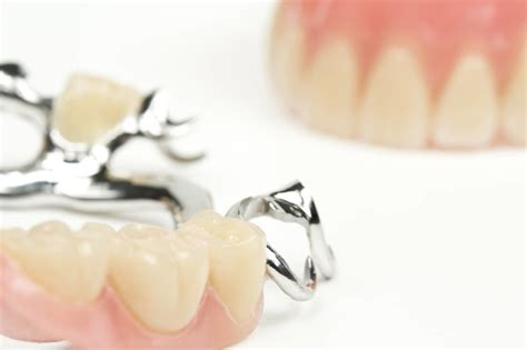 protesi mobile parziale protesi dentale fisse mobili corone dentali parziali