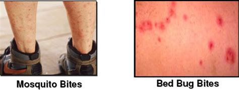 bed bug bite marks body pictures treatment  brochure