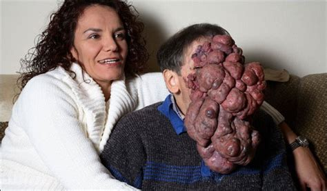 jose man with no face after surgery 10 people with shocking and extreme deformities listverse