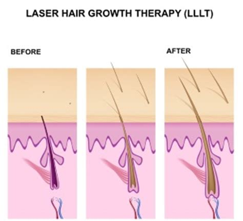 light therapy for hair growth low level laser light therapy for hair growth shelly