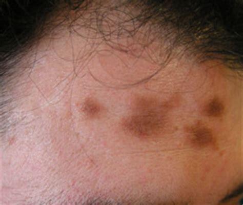 quemadura cuero cabelludo por tinte m 225 s all 225 de la piel salud elmundo es