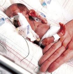 imagenes niños prematuros beb de seis meses de gestacin sobrevive a un aborto provocado