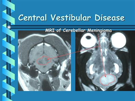 vestibular disease ppt acupuncture for neurological disorders powerpoint presentation id 45160