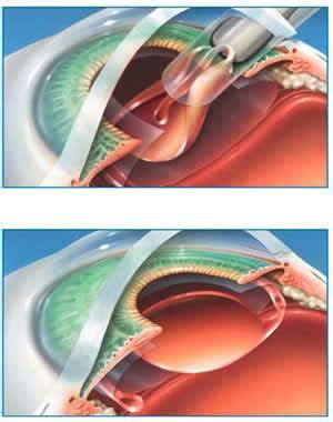 cataracts | cataract surgery global laser vision