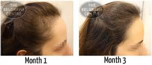 how to cut womens hair with crown women now losing hair in their 20s thanks to stress