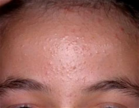 bump on s bump on forehead www pixshark images galleries with a bite
