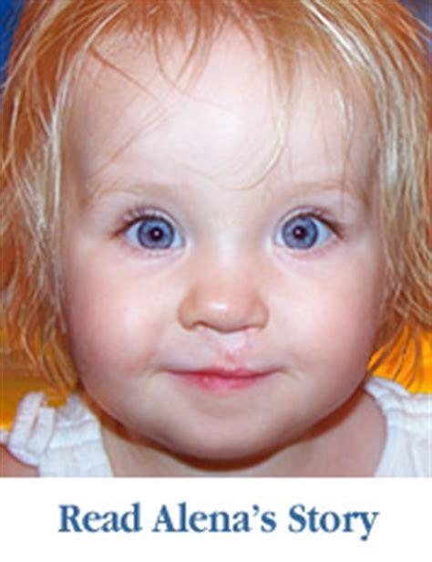 cranio facial deformities only nudesxxx