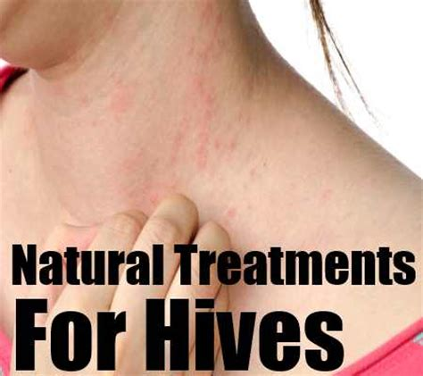 treatments for hives home remedies