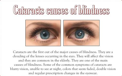 Causes Of Blindness In Adults 12 common causes of blindness in children and adults