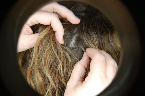 how to get bed bugs out of hair hair lice inspection buddy system lice busters