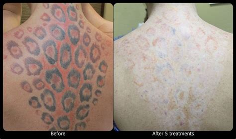 black ink tattoo removal before and after 1000 images about vanish laser removal progression