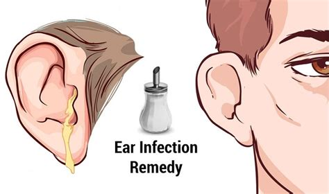 ear infection home treatment home remedies for ear infections top 10 home remedies