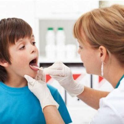 test streptococco farmacia microtrace test test streptococco a
