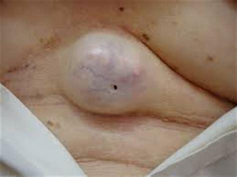 sebaceous cyst rupture epidermoid sebaceous cysts brazil pdf ppt reports symptoms treatment