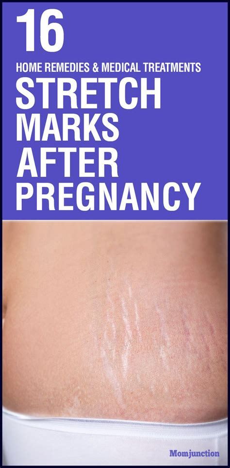 Health Tips Stretch Marks And Pregnancy by 17 Best Images About Pregnancy Care On Labor
