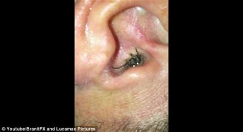 why does my pug the air 耳の違和感と激痛の犯人は 耳の中に棲みついたクモ エニグム enigme