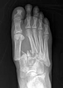 Clinical management of Lisfranc joint injuries | Lower