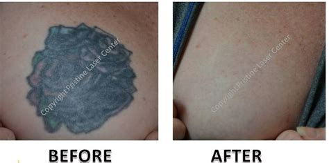 red ink tattoo removal laser removal before and after photos orlando
