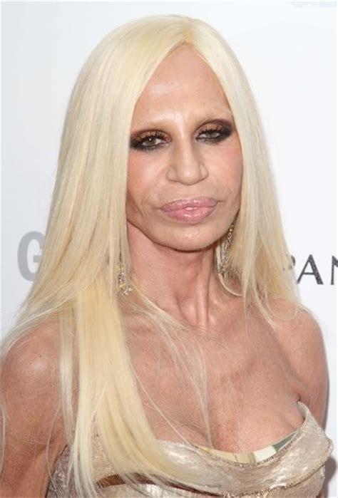 Donatellas Heartbreak by Donatella Versace Botox Versace And