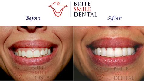 cost of veneers in san diego brite smile dental san diego