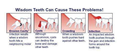 wisdom tooth removal at a b dental clinic