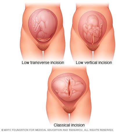 in c section where is the cut uterine incisions used during c sections mayo clinic