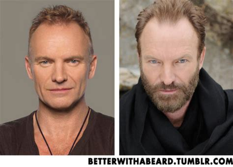 sting hair transplant better with a beard