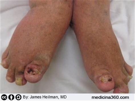 artrite psoriasica alimentazione psoriasi