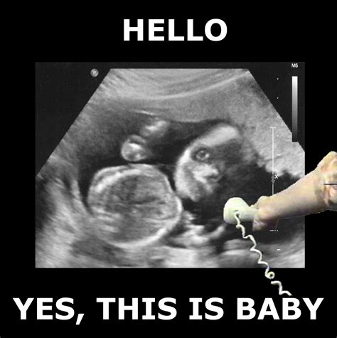 Ultrasound Meme - wife managed to make our creepy ultrasound or our daughter