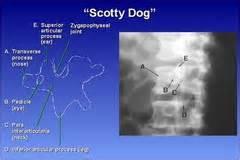scotty spine bontrager lumbar spine flashcards quizlet