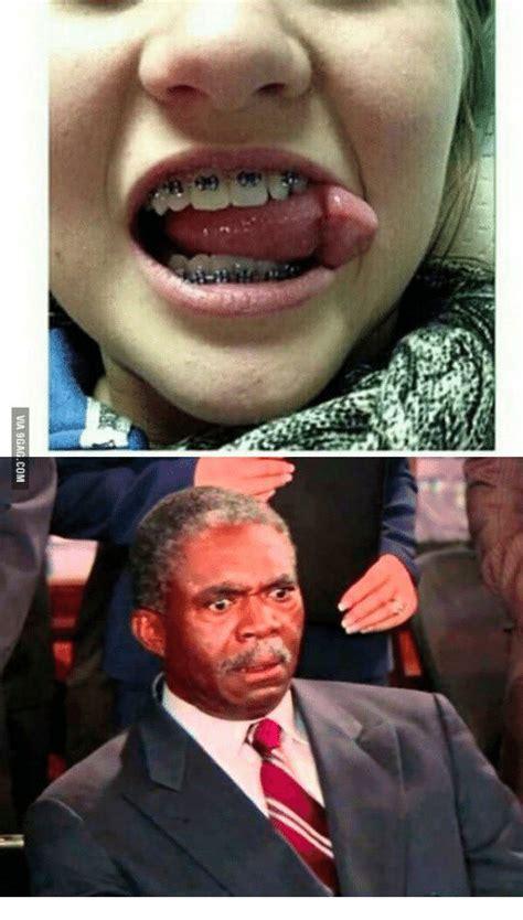 Braces Girl Meme - 99 girls with braces giving blowjobs meme on sizzle