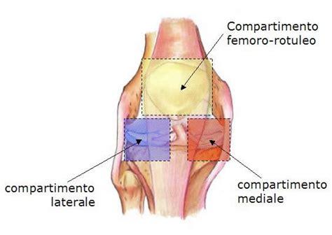 dolore parte interna ginocchio sinistro protesi monocompartimentale per artrosi al ginocchio